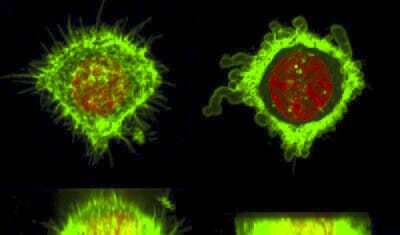 free copyright HeLa cell deformation using microfluidic device