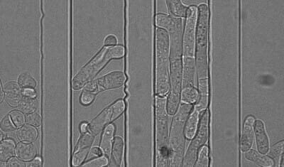 free copyright four microfluidic channel with four different type of pombe yeast cell