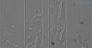 microfluidic-channels-different-type-pombe-yeast-cell-flow-perfusion