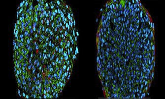 3D-cell-culture-perfusion-confocal-microscopy