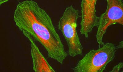 HeLa_cells_stained_with_antibody_to_actin_(green)_,_vimentin_(red)_and_DNA_(blue)