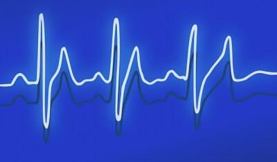Cardiac Pulsation