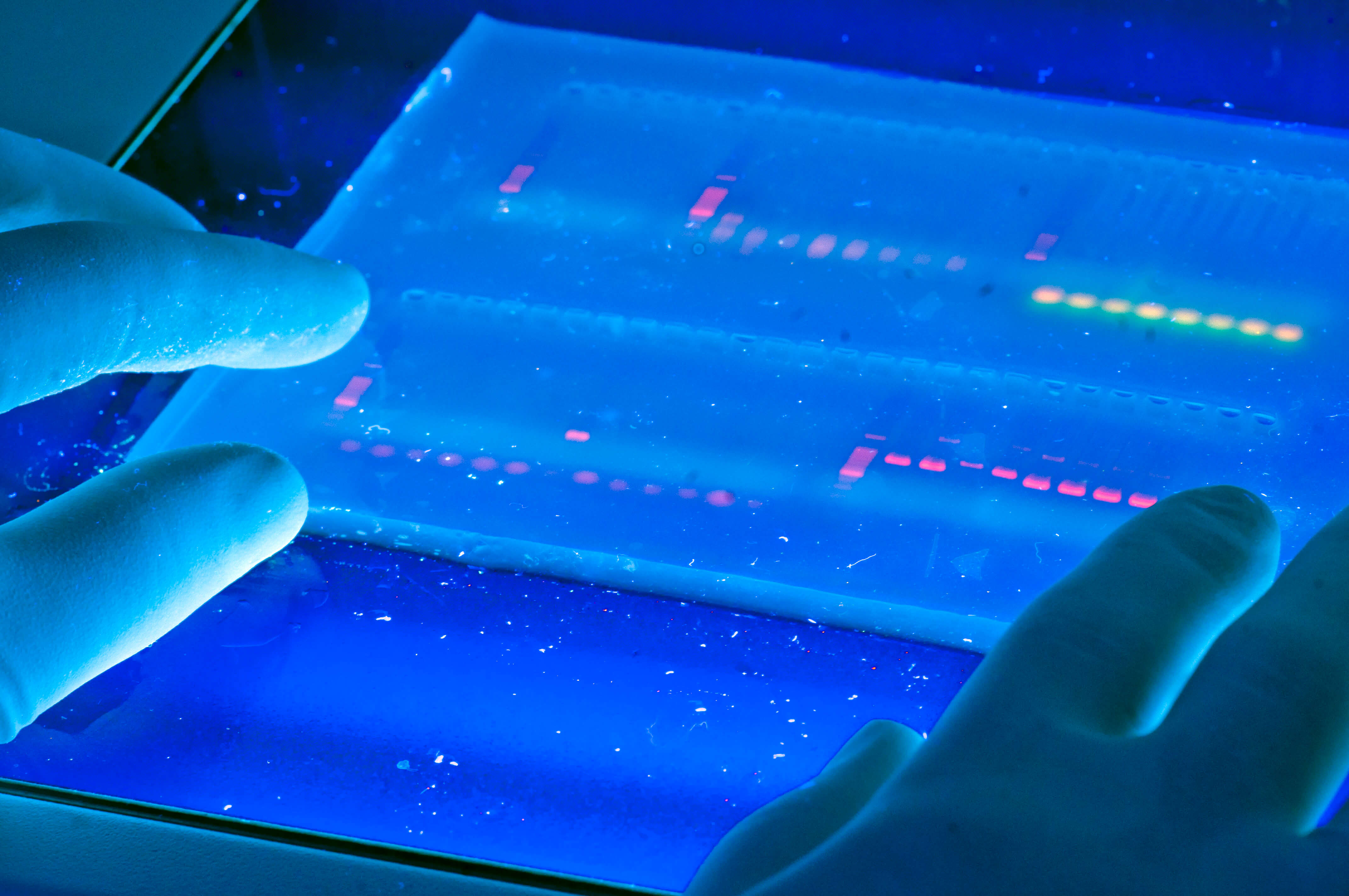 Materials for Microfluidic Chips Fabrication-Hydrogel-microfluidic chip