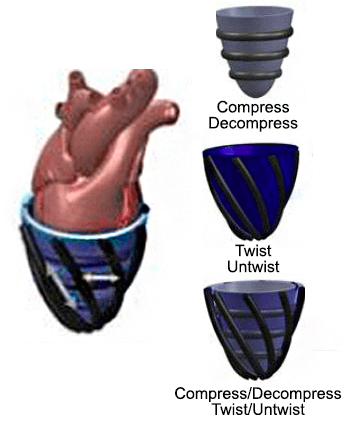 heart-prosthetic-wearable-soft-robot-robotics-softbot-softrobot-microfluidics-pressure-control