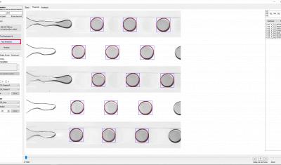 Microfluidic droplet generation flow focusing analysis background threshold